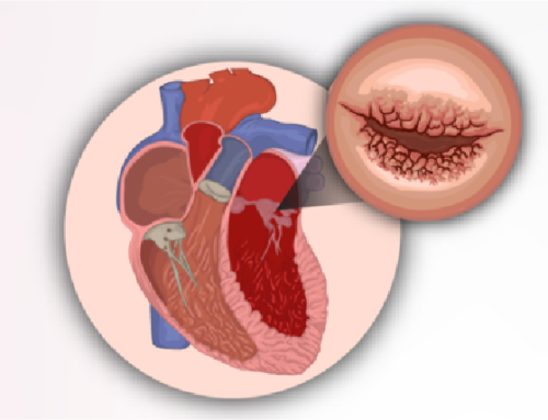 THERE IS A LINK BETWEEN RHEUMATIC HEART DISEASE AND RHEUMATIC FEVER
